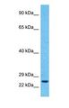 Western blot of RAB6B Antibody with human HepG2 Whole Cell lysate.  This image was taken for the unconjugated form of this product. Other forms have not been tested.