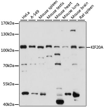 RAB6KIFL / KIF20A Antibody - Western blot analysis of extracts of various cell lines, using KIF20A antibody at 1:1000 dilution. The secondary antibody used was an HRP Goat Anti-Rabbit IgG (H+L) at 1:10000 dilution. Lysates were loaded 25ug per lane and 3% nonfat dry milk in TBST was used for blocking. An ECL Kit was used for detection and the exposure time was 15s.