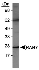 Detection of RAB7 in NIH/3T3 cell lysates.
