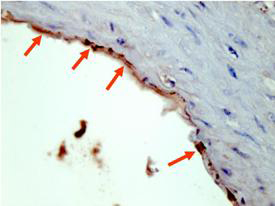 Anti-HA Epitope Tag Antibody - Immunohistochemistry. Affinity Purified anti-HA epitope tag polyclonal antibody detects HA tagged recombinant proteins by IHC on formalin fixed paraffin embedded tissue. Arrowheads point to expression of HA tagged proteins in endothelial cells of mouse aorta. Sections of 4 micron were prepared from representative paraffin blocks. Sections were then deparaffinized and rehydrated with xylene and alcohol. Citrate buffer antigen retrieval was performed for 30 min in a boiling jar. Anti-HA was diluted in blocking buffer at 1:2000 and reacted at 4° C overnight followed by signal detection using horseradish peroxidase with DAB as the chromogenic substrate. Tissue was counterstained with Mayers hematoxylin. Personal Communication, Behzad Yeganeh, U. Manitoba, Winnipeg, Canada.