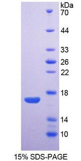 AQP1 / Aquaporin 1 Protein - Recombinant  Aquaporin 1, Colton Blood Group By SDS-PAGE