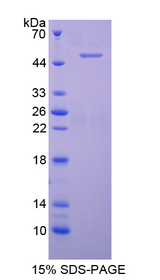 Complement C9 Protein - Recombinant  Complement Component 9 By SDS-PAGE