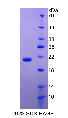 F7 / Factor VII Protein - Recombinant  Coagulation Factor VII By SDS-PAGE