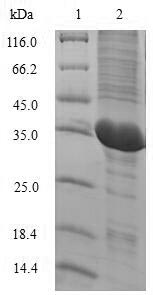 IL2 Protein - (Tris-Glycine gel) Discontinuous SDS-PAGE (reduced) with 5% enrichment gel and 15% separation gel.