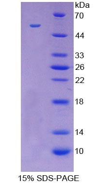 LGALS3 / Galectin 3 Protein - Recombinant  Galectin 3 By SDS-PAGE
