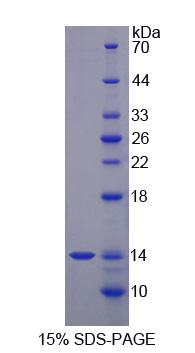 S100A12 Protein - Recombinant  S100 Calcium Binding Protein A12 By SDS-PAGE