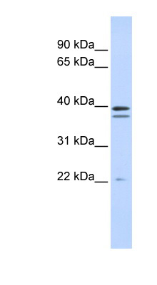 RABGGTB antibody Western blot of Fetal Brain lysate. This image was taken for the unconjugated form of this product. Other forms have not been tested.
