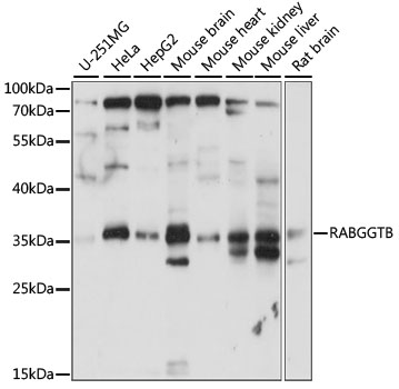 RABGGTB Antibody - Western blot analysis of extracts of various cell lines, using RABGGTB antibody at 1:1000 dilution. The secondary antibody used was an HRP Goat Anti-Rabbit IgG (H+L) at 1:10000 dilution. Lysates were loaded 25ug per lane and 3% nonfat dry milk in TBST was used for blocking. An ECL Kit was used for detection and the exposure time was 30s.