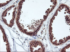 IHC of paraffin-embedded Human breast tissue using anti-RABL2A mouse monoclonal antibody.