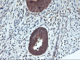IHC of paraffin-embedded Human endometrium tissue using anti-RABL2A mouse monoclonal antibody.
