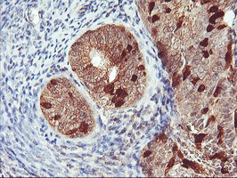 IHC of paraffin-embedded Adenocarcinoma of Human endometrium tissue using anti-RABL2A mouse monoclonal antibody.