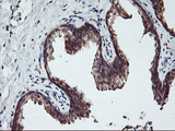IHC of paraffin-embedded Human prostate tissue using anti-RABL2A mouse monoclonal antibody.