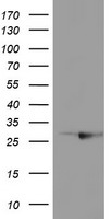 RABL2A Antibody - HEK293T cells were transfected with the pCMV6-ENTRY control (Left lane) or pCMV6-ENTRY RABL2A (Right lane) cDNA for 48 hrs and lysed. Equivalent amounts of cell lysates (5 ug per lane) were separated by SDS-PAGE and immunoblotted with anti-RABL2A.
