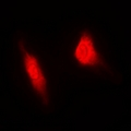 Immunofluorescent analysis of MGCRACGAP staining in HeLa cells. Formalin-fixed cells were permeabilized with 0.1% Triton X-100 in TBS for 5-10 minutes and blocked with 3% BSA-PBS for 30 minutes at room temperature. Cells were probed with the primary antibody in 3% BSA-PBS and incubated overnight at 4 deg C in a humidified chamber. Cells were washed with PBST and incubated with a DyLight 594-conjugated secondary antibody (red) in PBS at room temperature in the dark. DAPI was used to stain the cell nuclei (blue).