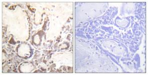IHC of paraffin-embedded human placenta, using GTPase Activating Protein (Phospho-Ser387) Antibody. The sample on the right was incubated with synthetic peptide.