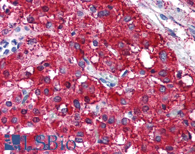 RAD21 Antibody - Anti-RAD21 antibody IHC of human adrenal medulla. Immunohistochemistry of formalin-fixed, paraffin-embedded tissue after heat-induced antigen retrieval. Antibody concentration 20 ug/ml. This image was taken for the unconjugated form of this product. Other forms have not been tested.