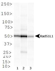 Rad51L1 Antibody (1 H3/13) - Western blot of Rad51L1 expression in 1) HeLa, 2) HepG2 and 3) Cos 7 whole cell lysates.