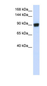 RAD54B Antibody - RAD54B antibody Western blot of Fetal Brain lysate. This image was taken for the unconjugated form of this product. Other forms have not been tested.