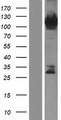 RADIL Protein - Western validation with an anti-DDK antibody * L: Control HEK293 lysate R: Over-expression lysate