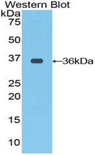 RAF1 / RAF Antibody - Western blot of recombinant RAF1 / RAF.  This image was taken for the unconjugated form of this product. Other forms have not been tested.
