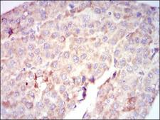 RAF1 / RAF Antibody - IHC of paraffin-embedded liver cancer tissues using RAF1 mouse monoclonal antibody with DAB staining.