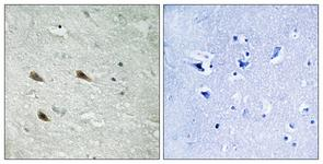 IHC of paraffin-embedded human brain, using C-RAF (Phospho-Ser289) Antibody. The sample on the right was incubated with synthetic peptide.