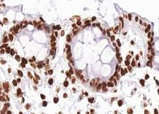 RAF1 / RAF Antibody - 1:100 staining human colon carcinoma tissue by IHC-P. The tissue was formaldehyde fixed and a heat mediated antigen retrieval step in citrate buffer was performed. The tissue was then blocked and incubated with the antibody for 1.5 hours at 22°C. An HRP conjugated goat anti-rabbit antibody was used as the secondary.