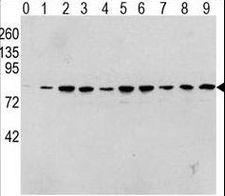 RAF1 / RAF Antibody - Western blot of Phospho-RAF1-pS338 Antibody in human TPA activated HeLa cell line lysates. Phospho-RAF1 (arrow) was detected using the purified antibody. (0: without TPA; 1: 60 ug/ml TPA, 15min; 2: 60 ug/ml TPA, 30min; 3: 60 ug/ml TPA, 45min; 4: 125 ug/ml TPA, 15min; 5: 125 ug/ml TPA, 30min; 6: 125 ug/ml TPA, 45min; 7: 250 ug/ml TPA, 15min; 8: 250 ug/ml TPA, 30min; 9: 250 ug/ml, 45min)