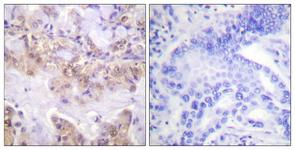 IHC of paraffin-embedded human lung carcinoma, using C-RAF (Phospho-Ser621) Antibody. The sample on the right was incubated with synthetic peptide.