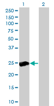 Western blot of RALB expression in transfected 293T cell line by RALB monoclonal antibody clone 4D1.