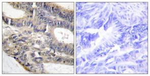 IHC of paraffin-embedded human colon carcinoma tissue, using AS250 Antibody. The picture on the right is treated with the synthesized peptide.