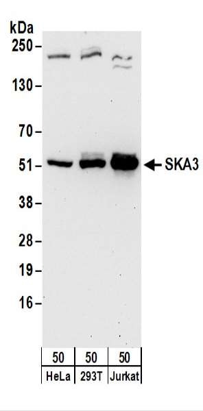 Detection of Human SKA3 by Western Blot. Samples: Whole cell lysate (50 ug) from HeLa, 293T, and Jurkat cells. Antibodies: Affinity purified rabbit anti-SKA3 antibody used for WB at 0.1 ug/ml. Detection: Chemiluminescence with an exposure time of 30 seconds.
