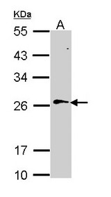 Sample (30 ug of whole cell lysate). A: Hela. 12% SDS PAGE. RAN antibody diluted at 1:1000.