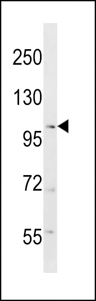 RANBP17 Antibody western blot of mouse testis tissue lysates (35 ug/lane). The RANBP17 antibody detected the RANBP17 protein (arrow).