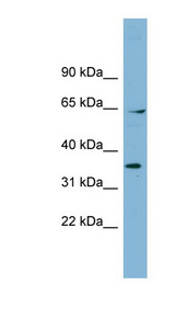 RANGAP1 antibody LS-C108038 Western blot of Fetal Muscle lysate.  This image was taken for the unconjugated form of this product. Other forms have not been tested.