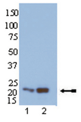 WB: Affinity Precipitation and Immunoblot Analysis: Representative blot from a previous lot. Samples were treated as described for affinity precipitation assay. Lane 1: HEK293 lysate in Rap1 Activation Lysis Buffer, 2X preincubated with GDP prior to precipitation with Ral GDS-RBD; Lane 2: HEK293 lysate in RLB preincubated with GTPγS prior to precipitation with Ral GDS-RBD. Proteins were resolved by electrophoresis, transferred to nitrocellulose and probed with anti-Rap1 (1µg/ml). Visualization was achieved using a goat anti-rabbit secondary antibody conjugated to HRP and a chemiluminescence detection system. Arrow indicates Rap1 (~22kDa).