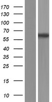 RAP1GDS1 / SmgGDS Protein - Western validation with an anti-DDK antibody * L: Control HEK293 lysate R: Over-expression lysate