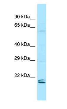 RAP2 antibody Western Blot of HeLa.  This image was taken for the unconjugated form of this product. Other forms have not been tested.