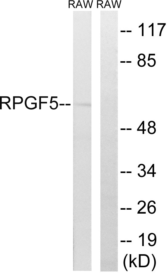 Western blot analysis of lysates from RAW264.7 cells, using RAPGEF5 Antibody. The lane on the right is blocked with the synthesized peptide.