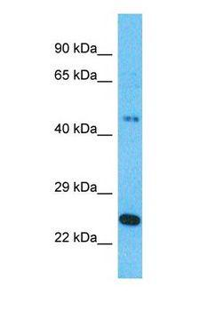RAPGEFL1 Antibody - Western blot of RAPGEFL1 Antibody with human 721_B Whole Cell lysate.  This image was taken for the unconjugated form of this product. Other forms have not been tested.