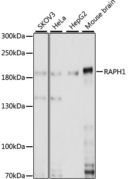RAPH1 Antibody - Western blot analysis of extracts of various cell lines, using RAPH1 antibody at 1:1000 dilution. The secondary antibody used was an HRP Goat Anti-Rabbit IgG (H+L) at 1:10000 dilution. Lysates were loaded 25ug per lane and 3% nonfat dry milk in TBST was used for blocking. An ECL Kit was used for detection and the exposure time was 30s.
