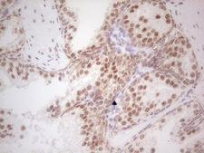 RARA / RAR Alpha Antibody - Immunohistochemical staining of paraffin-embedded Human prostate tissue within the normal limits using anti-RARA mouse monoclonal antibody. (Heat-induced epitope retrieval by 1 mM EDTA in 10mM Tris, pH8.5, 120C for 3min,