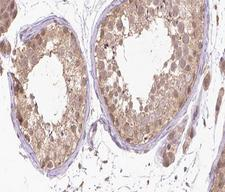 RARA / RAR Alpha Antibody - 1:200 staining human Testis tissue by IHC-P. The tissue was formaldehyde fixed and a heat mediated antigen retrieval step in citrate buffer was performed. The tissue was then blocked and incubated with the antibody for 1.5 hours at 22°C. An HRP conjugated goat anti-rabbit antibody was used as the secondary.