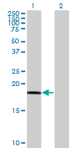 Western Blot analysis of RARRES3 expression in transfected 293T cell line by RARRES3 monoclonal antibody (M10), clone 1H5.Lane 1: RARRES3 transfected lysate(18.2 KDa).Lane 2: Non-transfected lysate.