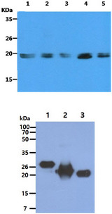 Ras Tag Antibody - The Cell lysates (40ug) were resolved by SDS-PAGE, transferred to PVDF membrane and probed with anti-human KRAS antibody (1:500). Proteins were visualized using a goat anti-mouse secondary antibody conjugated to HRP and an ECL detection system. Lane 1. : HeLa cell lysate Lane 2. : HepG2 cell lysate Lane 3. : Ramos cell lysate Lane 4. : A549 cell lysate Lane 5. : Balb/3T3 cell lysate The Recombinant protein (100ng) were resolved by SDS-PAGE, transferred to PVDF membrane and probed with anti-human RAS antibody (1:1000). Proteins were visualized using a goat anti-mouse secondary antibody conjugated to HRP and an ECL detection system. Lane 1. : KRAS recombinant protein (ATGP2062) Lane 2. : HRAS recombinant protein (ATGP0516) Lane 3. : NRAS recombinant protein (ATGP0492)