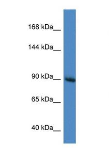 RASA1 Antibody - RASA1 antibody Western blot of Mouse Brain lysate. Antibody concentration 1 ug/ml. This image was taken for the unconjugated form of this product. Other forms have not been tested.