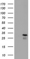 RASD2 Antibody - HEK293T cells were transfected with the pCMV6-ENTRY control (Left lane) or pCMV6-ENTRY RASD2 (Right lane) cDNA for 48 hrs and lysed. Equivalent amounts of cell lysates (5 ug per lane) were separated by SDS-PAGE and immunoblotted with anti-RASD2.