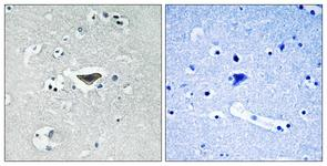 IHC of paraffin-embedded human brain, using Ras-GRF1 (Phospho-Ser916) Antibody. The sample on the right was incubated with synthetic peptide.