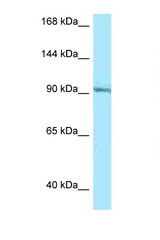 RASGRP1 antibody Western blot of Jurkat Cell lysate. Antibody concentration 1 ug/ml.  This image was taken for the unconjugated form of this product. Other forms have not been tested.