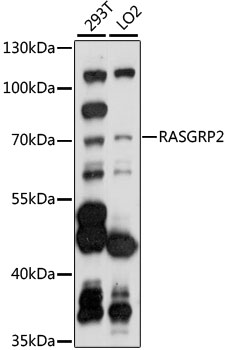RASGRP2 Antibody - Western blot analysis of extracts of various cell lines, using RASGRP2 antibody at 1:1000 dilution. The secondary antibody used was an HRP Goat Anti-Rabbit IgG (H+L) at 1:10000 dilution. Lysates were loaded 25ug per lane and 3% nonfat dry milk in TBST was used for blocking. An ECL Kit was used for detection and the exposure time was 30s.